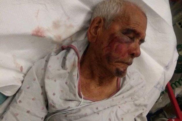 Buscan a racistas que golpearon a un mexicano de 91 años